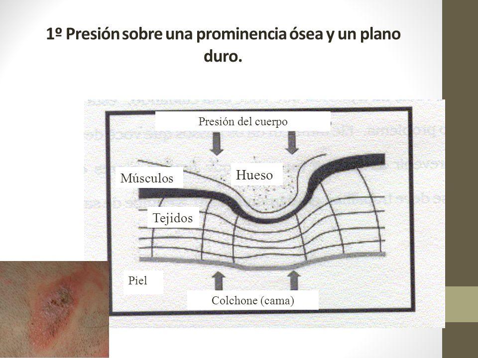 1º Presión sobre una prominencia ósea y un plano duro. Piel Músculos Tejidos Colchone (cama) Hueso Presión del cuerpo