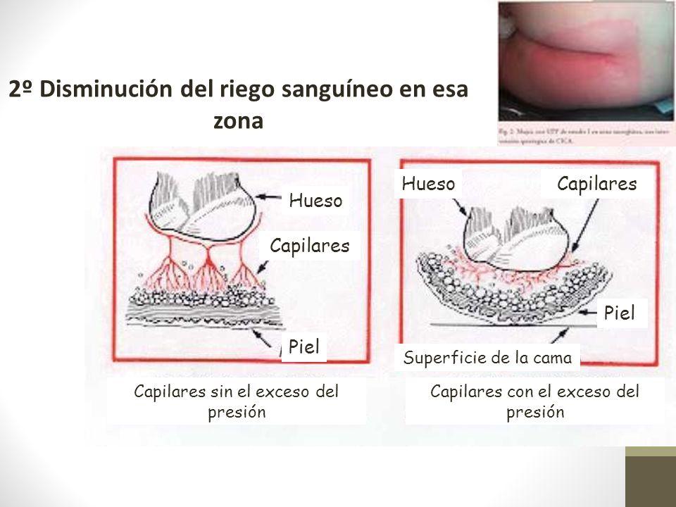 Hueso Capilares Piel Capilares sin el exceso del presión 2º Disminución del riego sanguíneo en esa zona Capilares con el exceso del presión Superficie