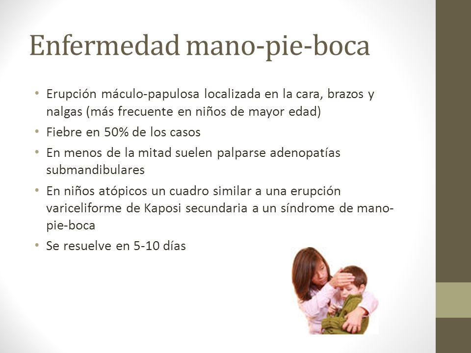 Erupción máculo-papulosa localizada en la cara, brazos y nalgas (más frecuente en niños de mayor edad) Fiebre en 50% de los casos En menos de la mitad