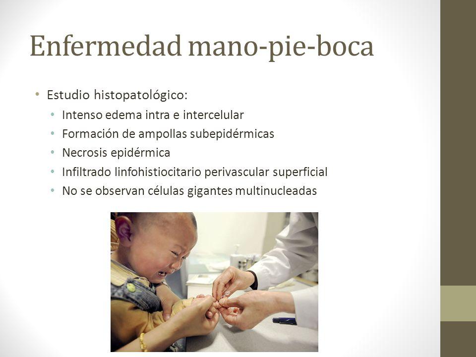 Enfermedad mano-pie-boca Estudio histopatológico: Intenso edema intra e intercelular Formación de ampollas subepidérmicas Necrosis epidérmica Infiltra