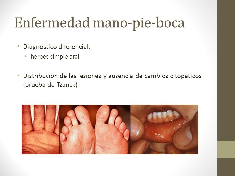 Enfermedad mano-pie-boca Diagnóstico diferencial: herpes simple oral Distribución de las lesiones y ausencia de cambios citopáticos (prueba de Tzanck)
