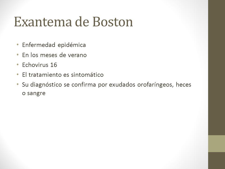 Exantema de Boston Enfermedad epidémica En los meses de verano Echovirus 16 El tratamiento es sintomático Su diagnóstico se confirma por exudados orof