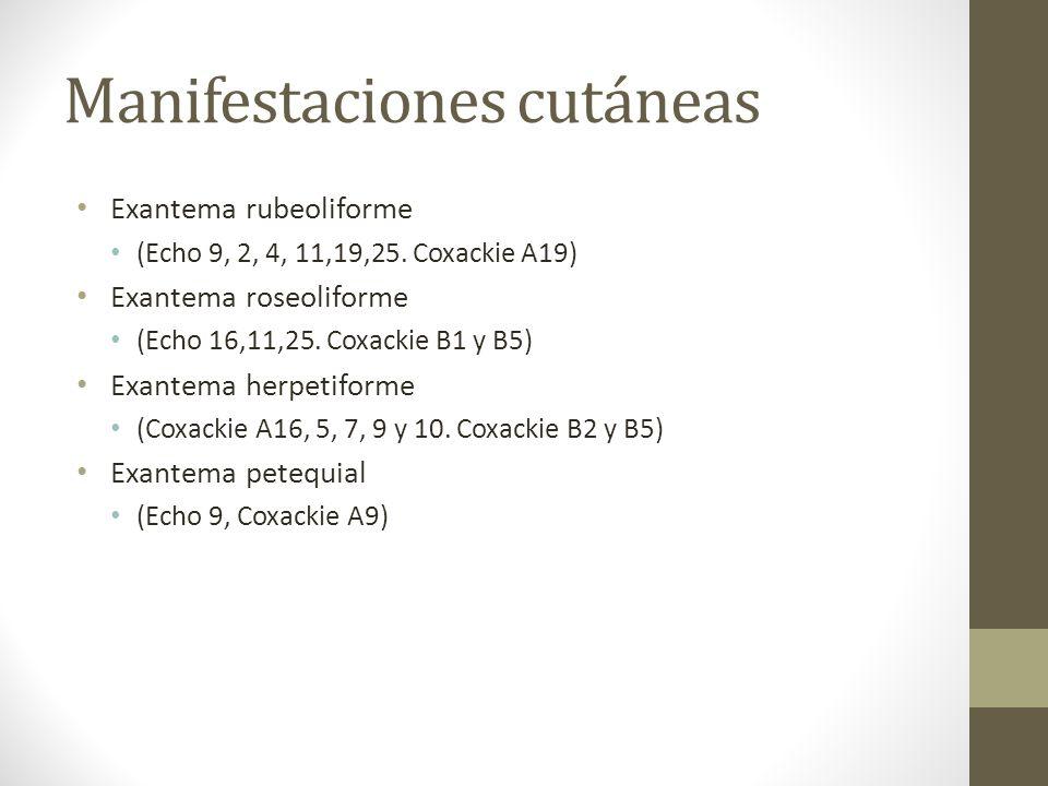 Manifestaciones cutáneas Exantema rubeoliforme (Echo 9, 2, 4, 11,19,25. Coxackie A19) Exantema roseoliforme (Echo 16,11,25. Coxackie B1 y B5) Exantema