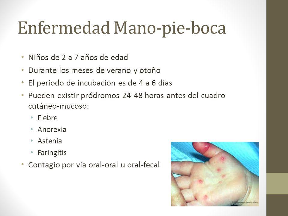 Enfermedad Mano-pie-boca Niños de 2 a 7 años de edad Durante los meses de verano y otoño El período de incubación es de 4 a 6 días Pueden existir pród