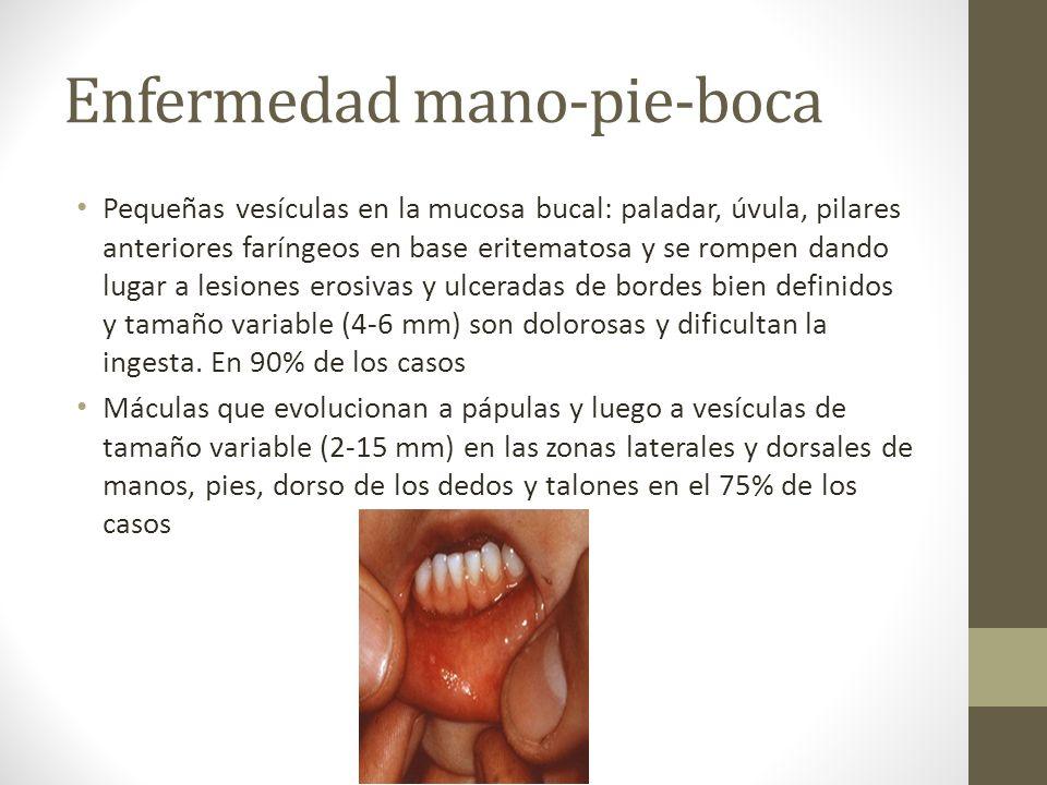 Enfermedad mano-pie-boca Pequeñas vesículas en la mucosa bucal: paladar, úvula, pilares anteriores faríngeos en base eritematosa y se rompen dando lug