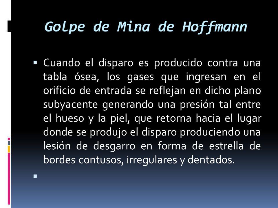 Golpe de Mina de Hoffmann Cuando el disparo es producido contra una tabla ósea, los gases que ingresan en el orificio de entrada se reflejan en dicho