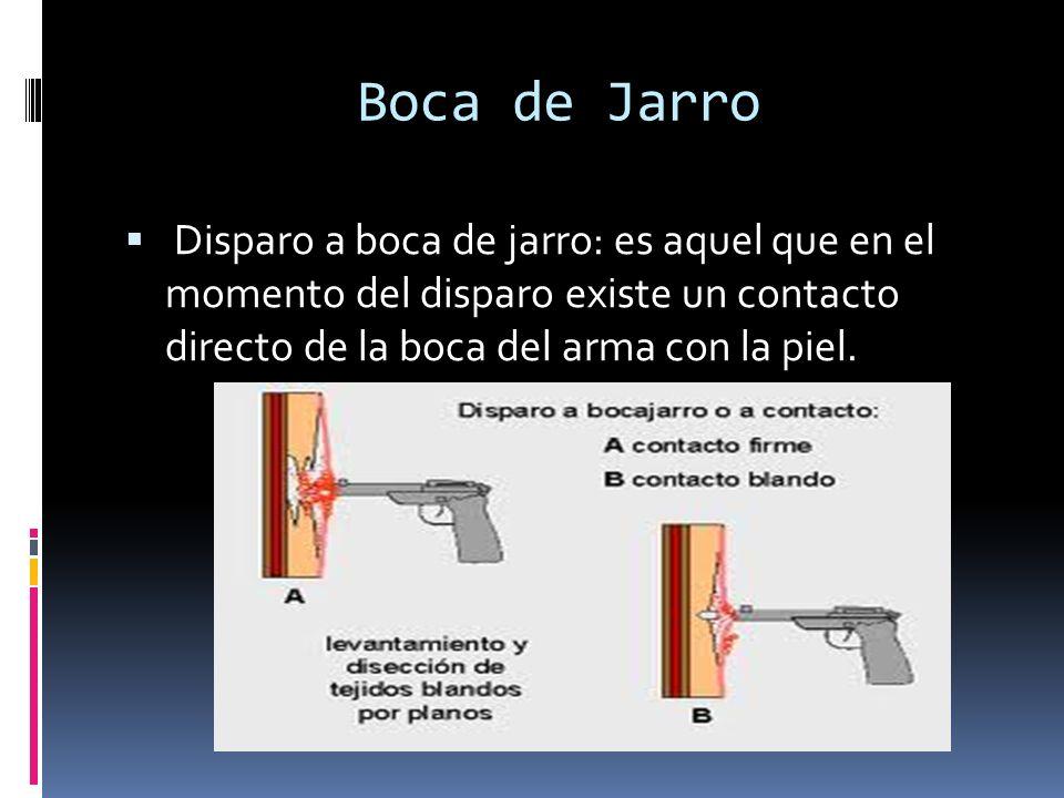 Boca de Jarro Disparo a boca de jarro: es aquel que en el momento del disparo existe un contacto directo de la boca del arma con la piel.