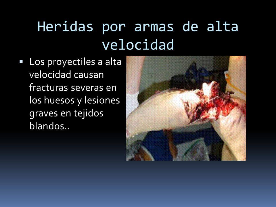 Heridas por armas de alta velocidad Los proyectiles a alta velocidad causan fracturas severas en los huesos y lesiones graves en tejidos blandos..