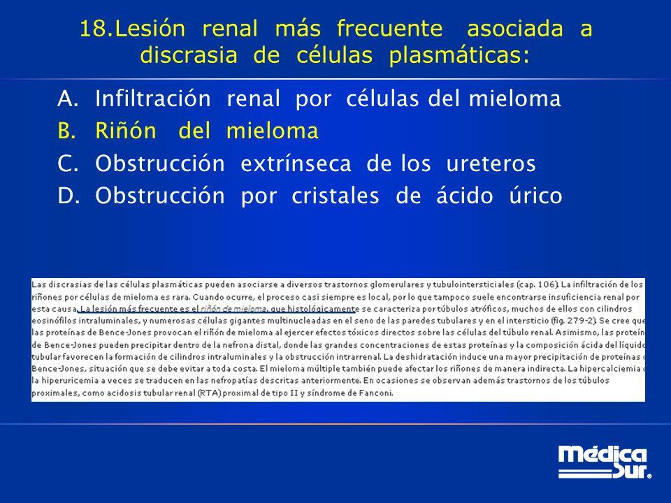 18.Lesión renal más frecuente asociada a discrasia de células plasmáticas: A.Infiltración renal por células del mieloma B.Riñón del mieloma C.Obstrucción extrínseca de los ureteros D.Obstrucción por cristales de ácido úrico