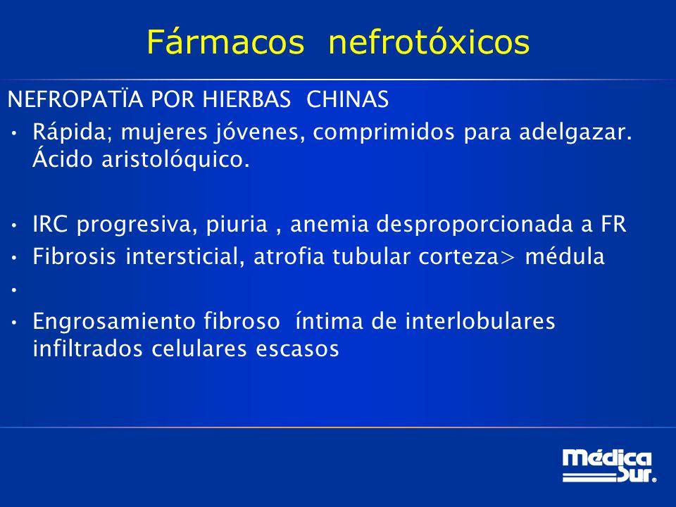 Fármacos nefrotóxicos NEFROPATÏA POR HIERBAS CHINAS Rápida; mujeres jóvenes, comprimidos para adelgazar.