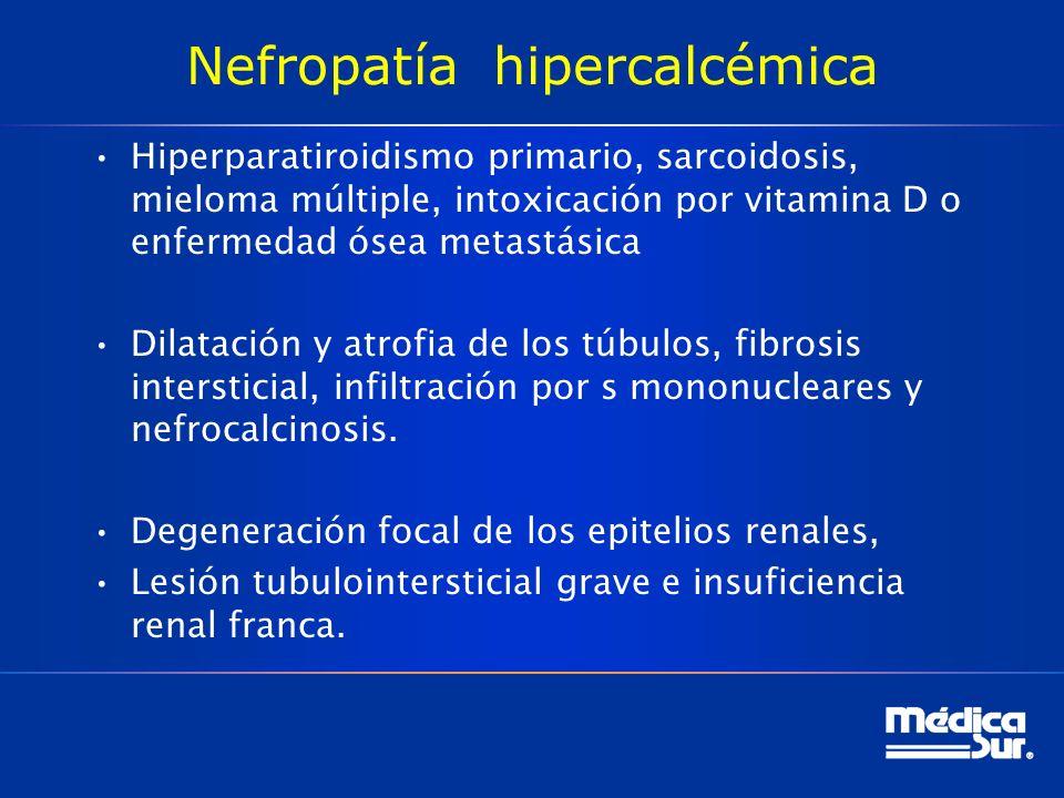 Nefropatía hipercalcémica Hiperparatiroidismo primario, sarcoidosis, mieloma múltiple, intoxicación por vitamina D o enfermedad ósea metastásica Dilatación y atrofia de los túbulos, fibrosis intersticial, infiltración por s mononucleares y nefrocalcinosis.