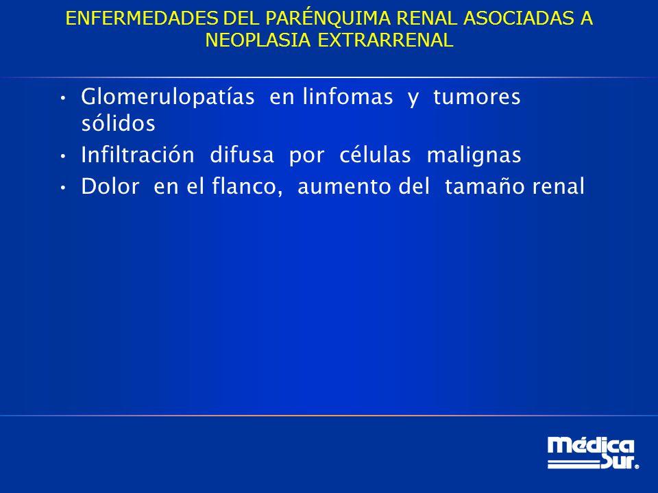 ENFERMEDADES DEL PARÉNQUIMA RENAL ASOCIADAS A NEOPLASIA EXTRARRENAL Glomerulopatías en linfomas y tumores sólidos Infiltración difusa por células malignas Dolor en el flanco, aumento del tamaño renal