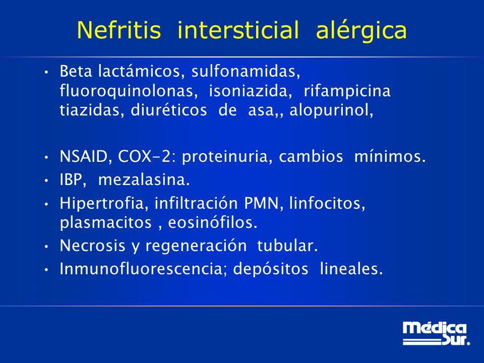 Nefritis intersticial alérgica Beta lactámicos, sulfonamidas, fluoroquinolonas, isoniazida, rifampicina tiazidas, diuréticos de asa,, alopurinol, NSAID, COX-2: proteinuria, cambios mínimos.