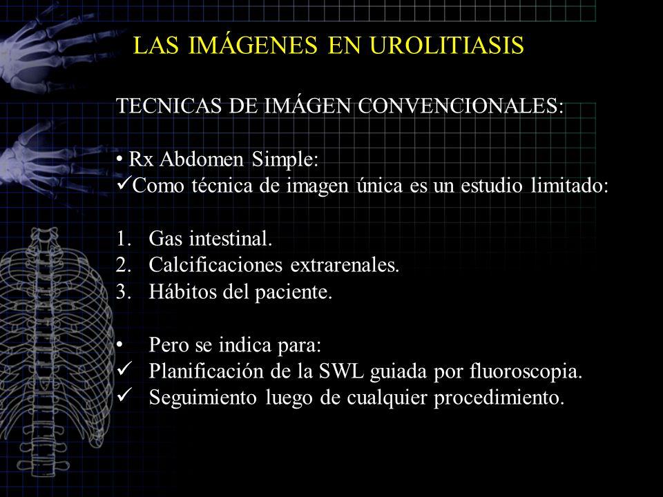 LAS IMÁGENES EN UROLITIASIS TECNICAS DE IMÁGEN CONVENCIONALES: Rx Abdomen Simple: Como técnica de imagen única es un estudio limitado: 1.Gas intestina
