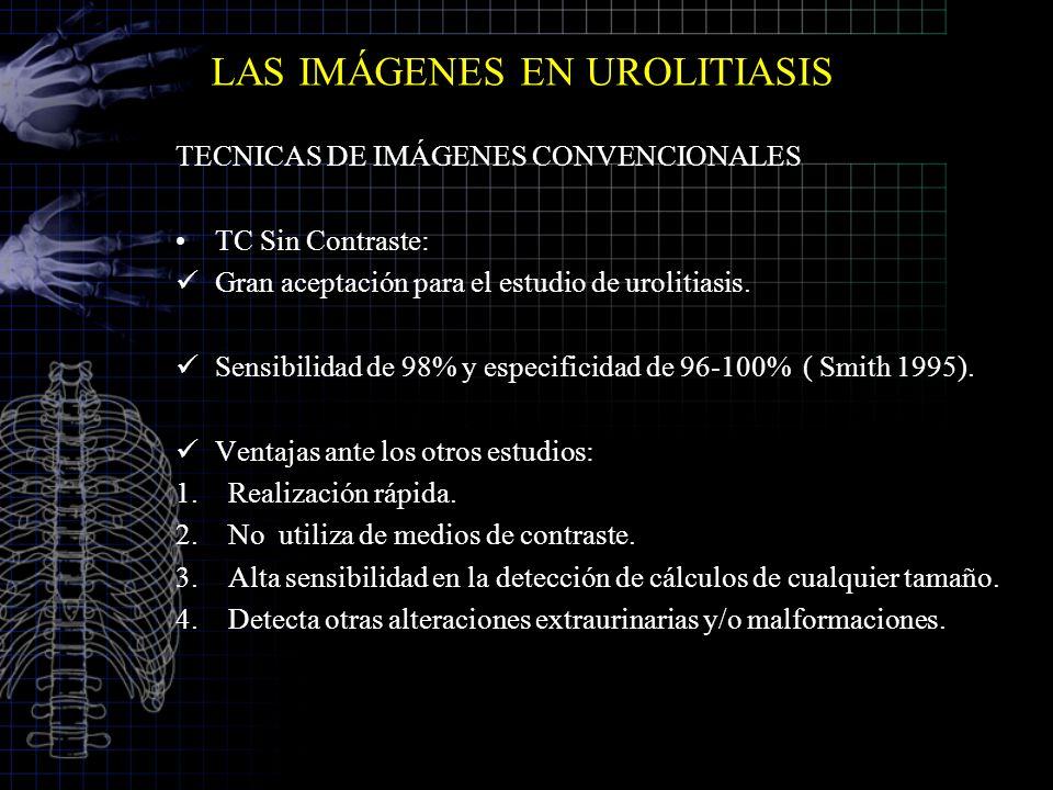 LAS IMÁGENES EN UROLITIASIS TECNICAS DE IMÁGENES CONVENCIONALES TC Sin Contraste: Gran aceptación para el estudio de urolitiasis. Sensibilidad de 98%