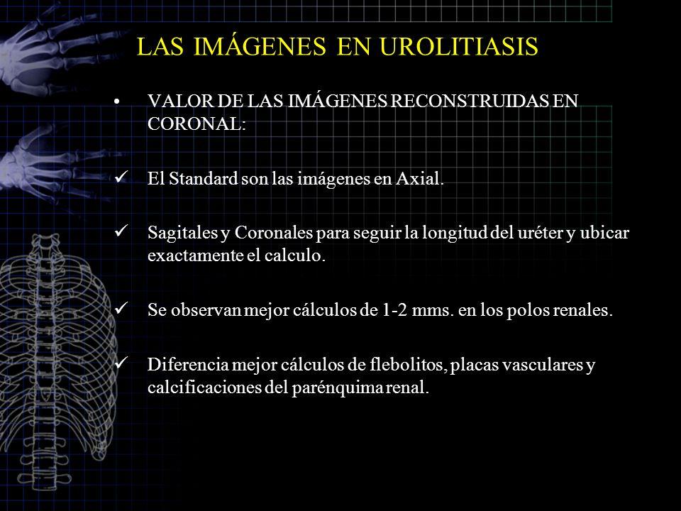 LAS IMÁGENES EN UROLITIASIS VALOR DE LAS IMÁGENES RECONSTRUIDAS EN CORONAL: El Standard son las imágenes en Axial. Sagitales y Coronales para seguir l