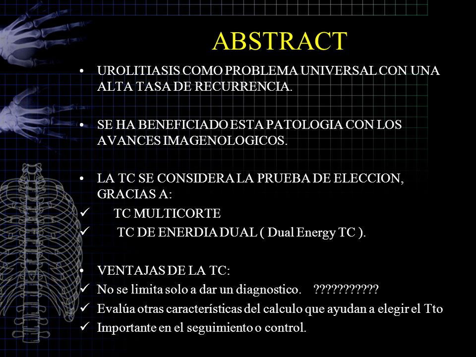 ABSTRACT UROLITIASIS COMO PROBLEMA UNIVERSAL CON UNA ALTA TASA DE RECURRENCIA.