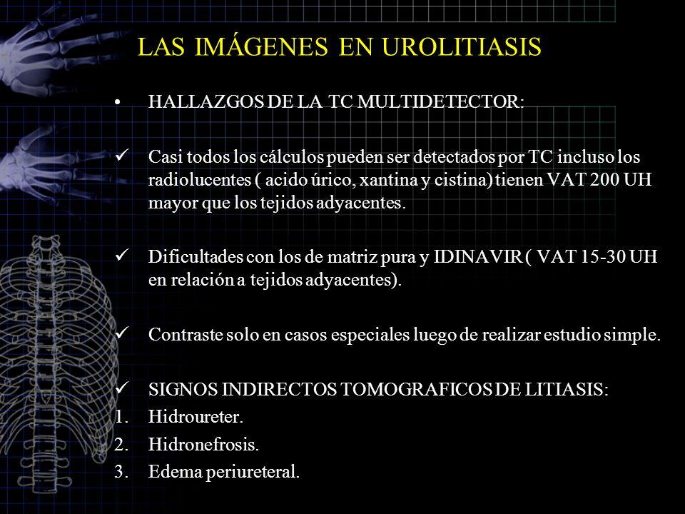 LAS IMÁGENES EN UROLITIASIS HALLAZGOS DE LA TC MULTIDETECTOR: Casi todos los cálculos pueden ser detectados por TC incluso los radiolucentes ( acido ú