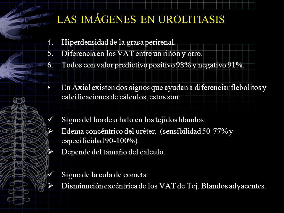 LAS IMÁGENES EN UROLITIASIS 4.Hiperdensidad de la grasa perirenal. 5.Diferencia en los VAT entre un riñón y otro. 6.Todos con valor predictivo positiv