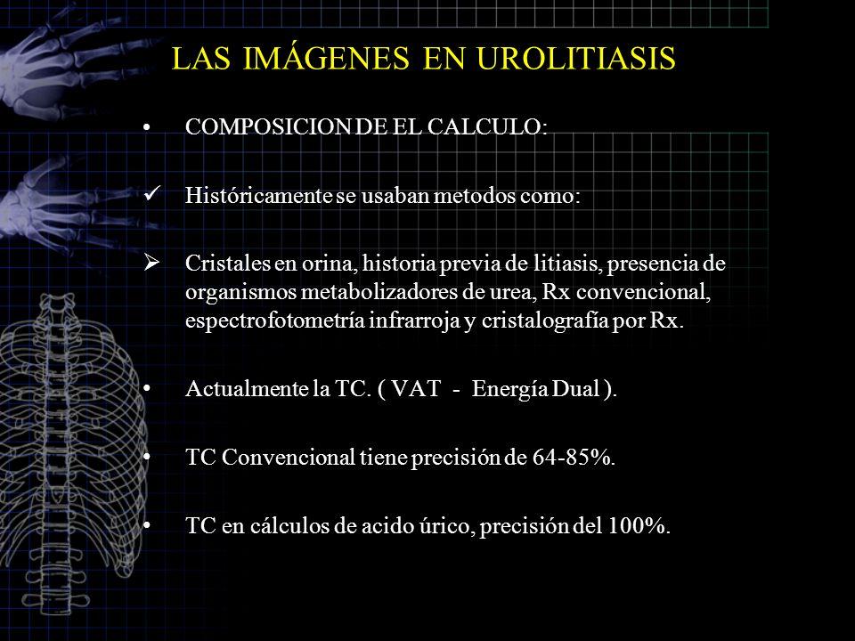 LAS IMÁGENES EN UROLITIASIS COMPOSICION DE EL CALCULO: Históricamente se usaban metodos como: Cristales en orina, historia previa de litiasis, presenc