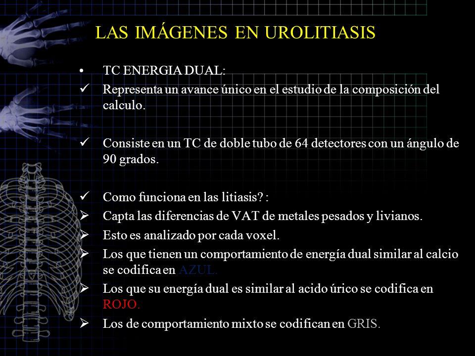 LAS IMÁGENES EN UROLITIASIS TC ENERGIA DUAL: Representa un avance único en el estudio de la composición del calculo. Consiste en un TC de doble tubo d