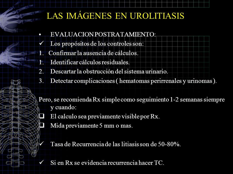 EVALUACION POSTRATAMIENTO: Los propósitos de los controles son: 1. Confirmar la ausencia de cálculos. 1.Identificar cálculos residuales. 2.Descartar l
