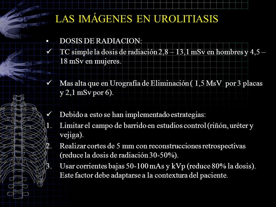 LAS IMÁGENES EN UROLITIASIS DOSIS DE RADIACION: TC simple la dosis de radiación 2,8 – 13,1 mSv en hombres y 4,5 – 18 mSv en mujeres. Mas alta que en U