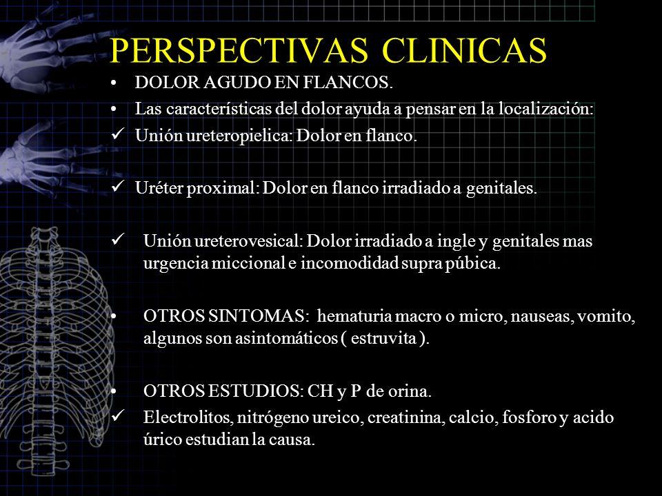 PERSPECTIVAS CLINICAS DOLOR AGUDO EN FLANCOS. Las características del dolor ayuda a pensar en la localización: Unión ureteropielica: Dolor en flanco.