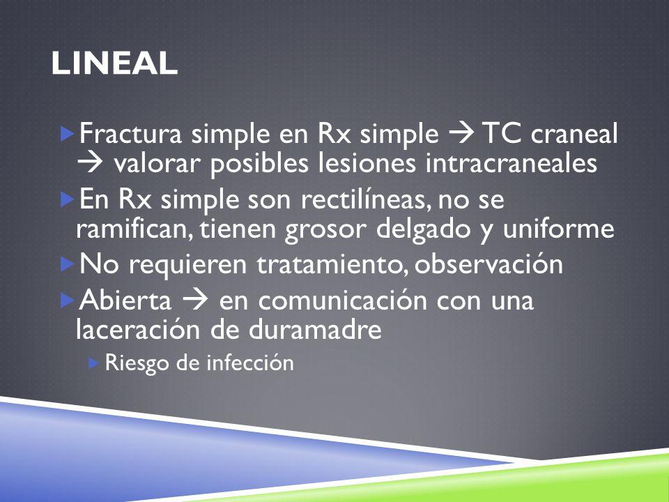 LINEAL Fractura simple en Rx simple TC craneal valorar posibles lesiones intracraneales En Rx simple son rectilíneas, no se ramifican, tienen grosor d