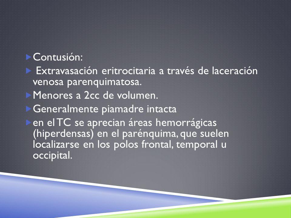 Contusión: Extravasación eritrocitaria a través de laceración venosa parenquimatosa. Menores a 2cc de volumen. Generalmente piamadre intacta en el TC