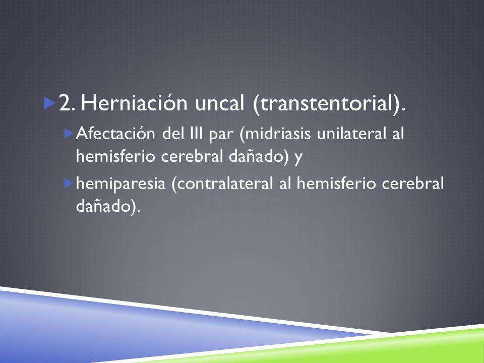 2. Herniación uncal (transtentorial). Afectación del III par (midriasis unilateral al hemisferio cerebral dañado) y hemiparesia (contralateral al hemi