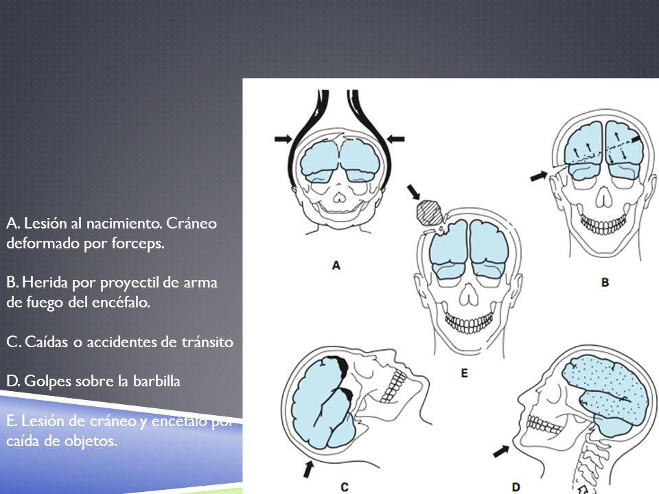 A. Lesión al nacimiento. Cráneo deformado por forceps. B. Herida por proyectil de arma de fuego del encéfalo. C. Caídas o accidentes de tránsito D. Go