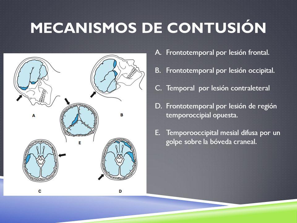 MECANISMOS DE CONTUSIÓN A.Frontotemporal por lesión frontal. B.Frontotemporal por lesión occipital. C.Temporal por lesión contraleteral D.Frontotempor