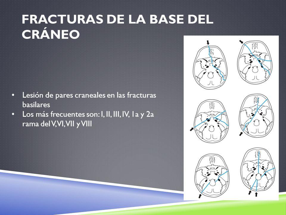 FRACTURAS DE LA BASE DEL CRÁNEO Lesión de pares craneales en las fracturas basilares Los más frecuentes son: I, II, III, IV, 1a y 2a rama del V, VI, V