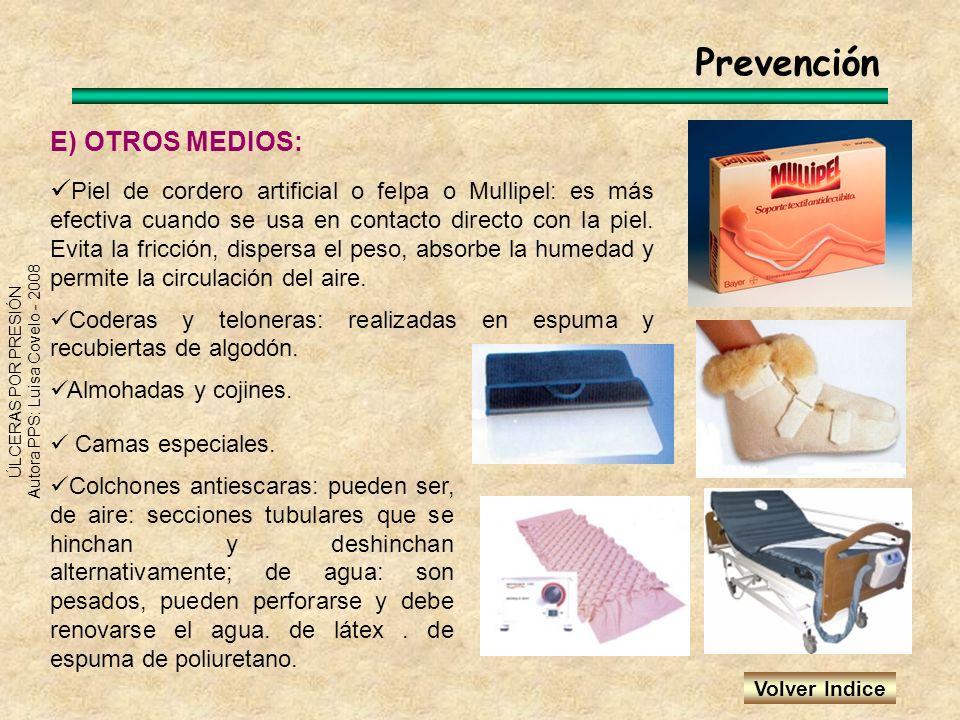 ÚLCERAS POR PRESIÓN Autora PPS: Luisa Covelo - 2008 Prevención E) OTROS MEDIOS: Piel de cordero artificial o felpa o Mullipel: es más efectiva cuando