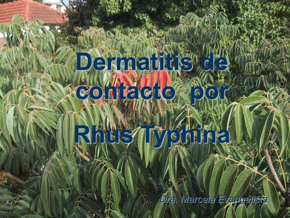 Dermatitis de contacto por Rhus Typhina Dra. Marcela Evangelista