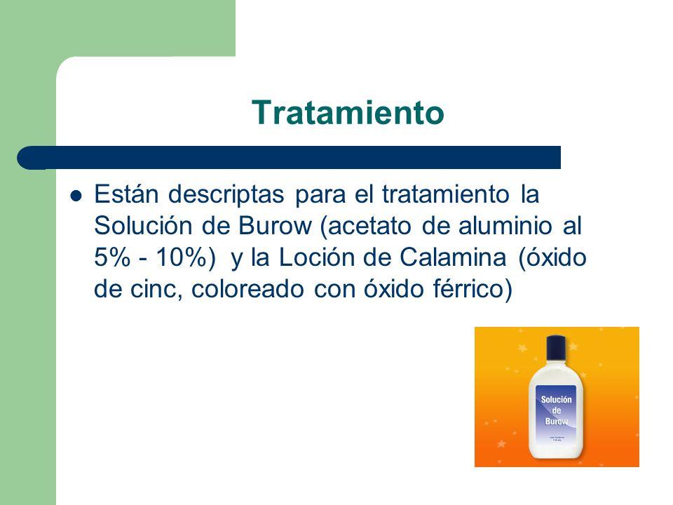 Tratamiento Están descriptas para el tratamiento la Solución de Burow (acetato de aluminio al 5% - 10%) y la Loción de Calamina (óxido de cinc, coloreado con óxido férrico)