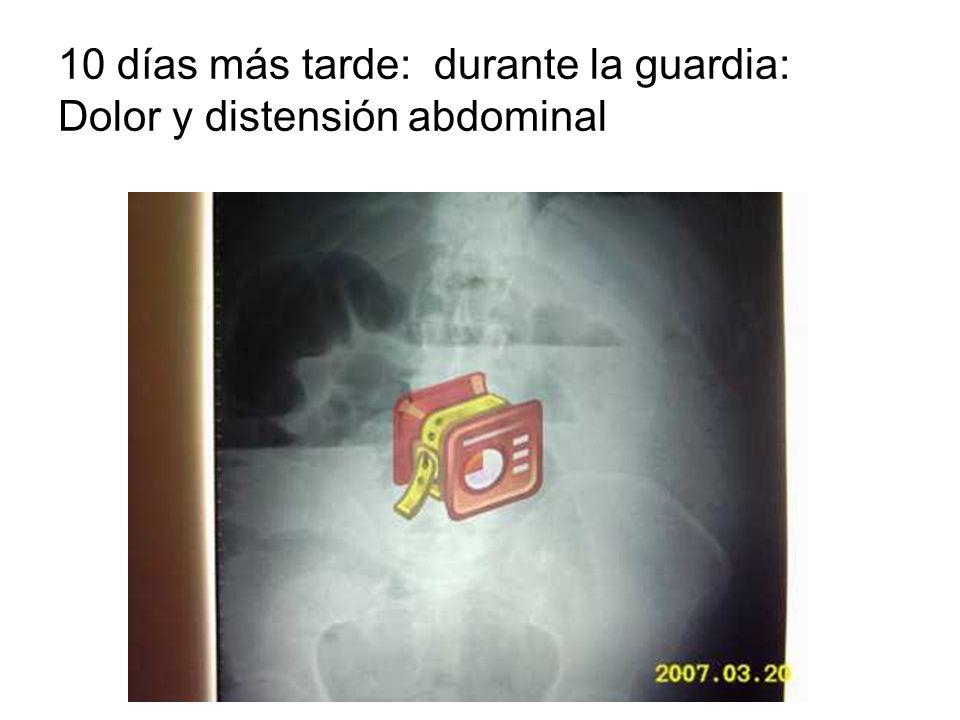 10 días más tarde: durante la guardia: Dolor y distensión abdominal
