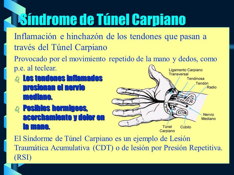 Síndrome de Túnel Carpiano b Los tendones inflamados presionan el nervio mediano.