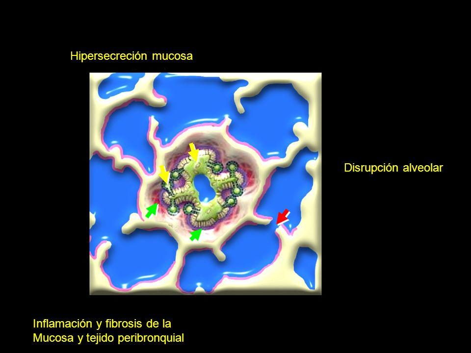 Alveolo Normal Hipersecreción mucosa (OBSTRUCCION LUMINAL) Inflamación y fibrosis de la Mucosa y tejido peribronquial (BRONQUIOLITIS OBLITERATIVA) Dis