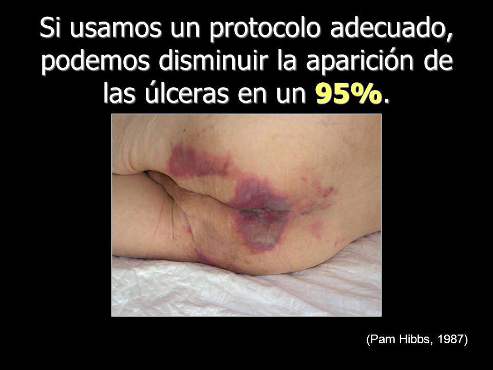 Si usamos un protocolo adecuado, podemos disminuir la aparición de las úlceras en un 95%. (Pam Hibbs, 1987)