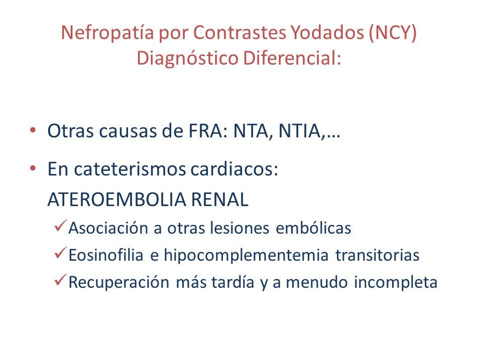 Nefropatía por Contrastes Yodados (NCY) Diagnóstico Diferencial: Otras causas de FRA: NTA, NTIA,… En cateterismos cardiacos: ATEROEMBOLIA RENAL Asocia