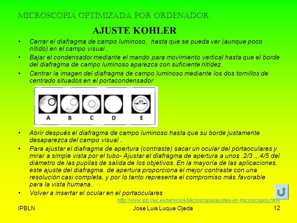IPBLNJose Luis Luque Ojeda 12 MICROSCOPIA OPTIMIZADA POR ORDENADOR Cerrar el diafragma de campo luminoso, hasta que se pueda ver (aunque poco nítido)