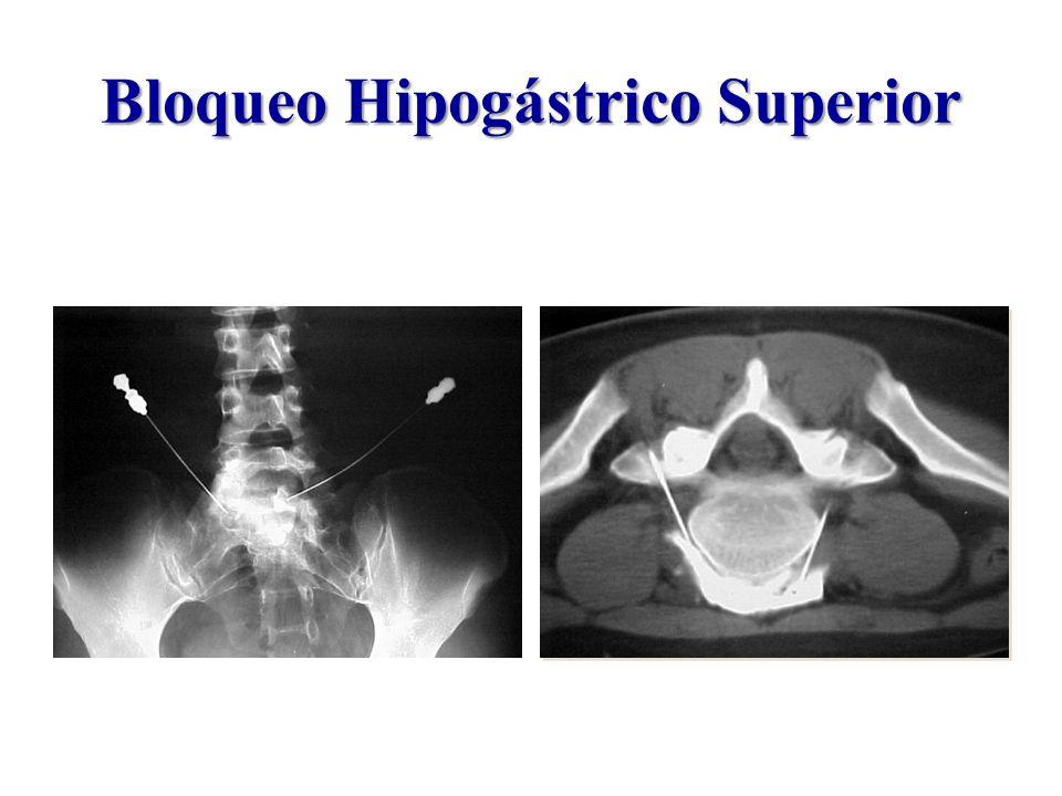 Bloqueo Hipogástrico Superior