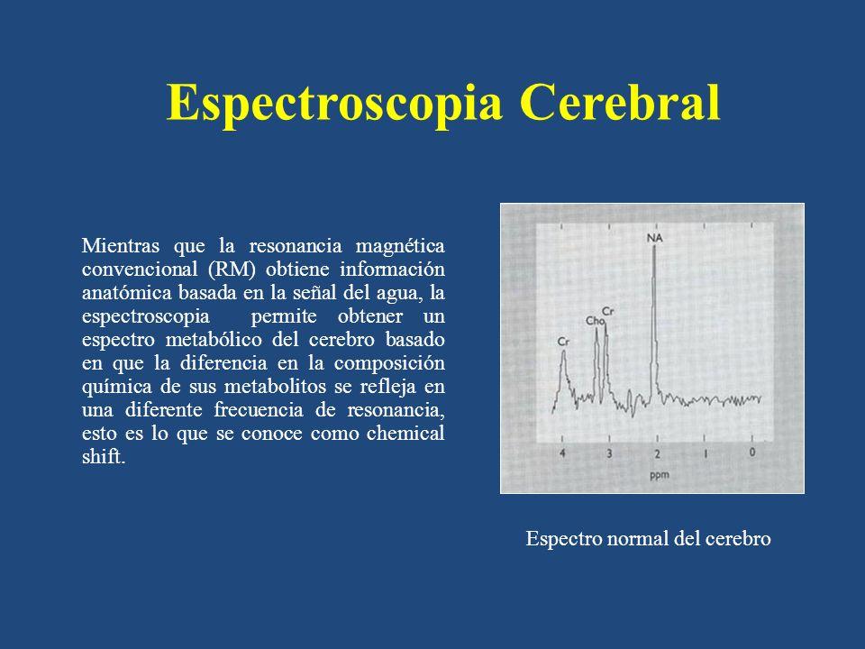 Espectroscopia Cerebral Mientras que la resonancia magnética convencional (RM) obtiene información anatómica basada en la señal del agua, la espectros