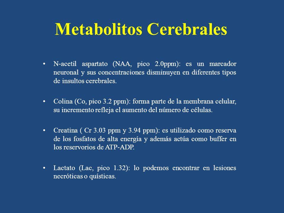 Metabolitos Cerebrales N-acetil aspartato (NAA, pico 2.0ppm): es un marcador neuronal y sus concentraciones disminuyen en diferentes tipos de insultos cerebrales.