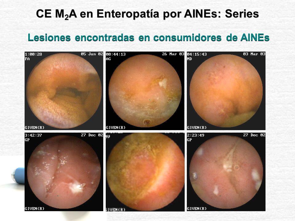 GRADO 0 6/21 (28.57%) GRADO 2 9/21 (42.86%) GRADO 1 6/21 (28.57%) Pacientes con Lesiones Gástricas GRADO 2 5/21 (23.81%) GRADO 1 12/21 (57.14%) GRADO 0 4/21 (19.05%) Pacientes con Lesiones Intestinales CE M 2 A en Enteropatía por AINEs: Series