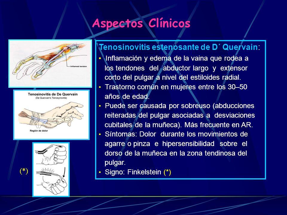 Aspectos Clínicos Epicondilitis Codo del tenista: Es una distensión dolorosa de los músculos (extensores de los dedos y de la muñeca) o de sus inserciones tendinosas a nivel del epicóndilo humeral en la cara externa del codo, que procede de un sobreuso o de esfuerzos repetitivos a ese nivel.