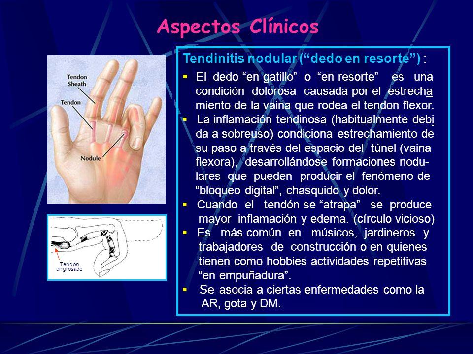 Síndrome del Canal de Guyon (SCG) : El síndrome del canal de Guyon es debido a la compresión del nervio cubital (ulnar) dentro de la palma de la mano.