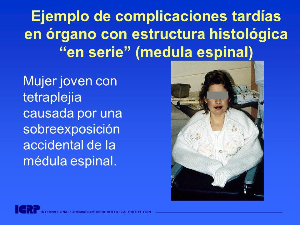 INTERNATIONAL COMMISSION ON RADIOLOGICAL PROTECTION Ejemplo de complicaciones tardías en órgano con estructura histológica en serie (medula espinal) M